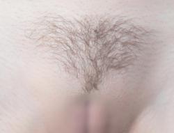 Vライン脱毛 トライアングルミニ形 画像