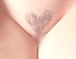 Vライン脱毛 ハート形 画像