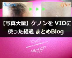 写真あり!ケノンをVIOに使った経過まとめブログ