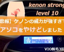 【ケノンでVIO脱毛】3回目の画像
