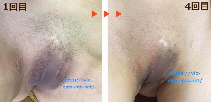 【ケノンでVIO脱毛】1回目と4回目の比較画像