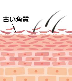 脱毛後に毛が抜けるのは、新陳代謝が関係している