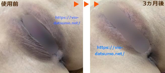 イビサクリーム【3ヵ月後の効果!】